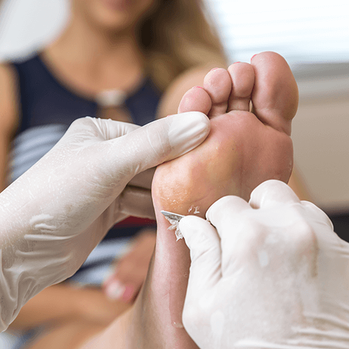 General podiatry services including removal of dead skin, wart treatments and more.