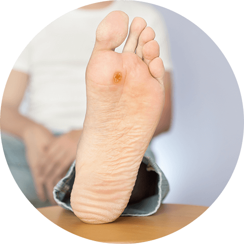 Diabetic foot care and support at Dapto Podiatrist