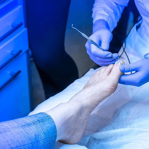 Ingrown toenail treatment and nail surgery is available at Dapto Podiatry Clinic